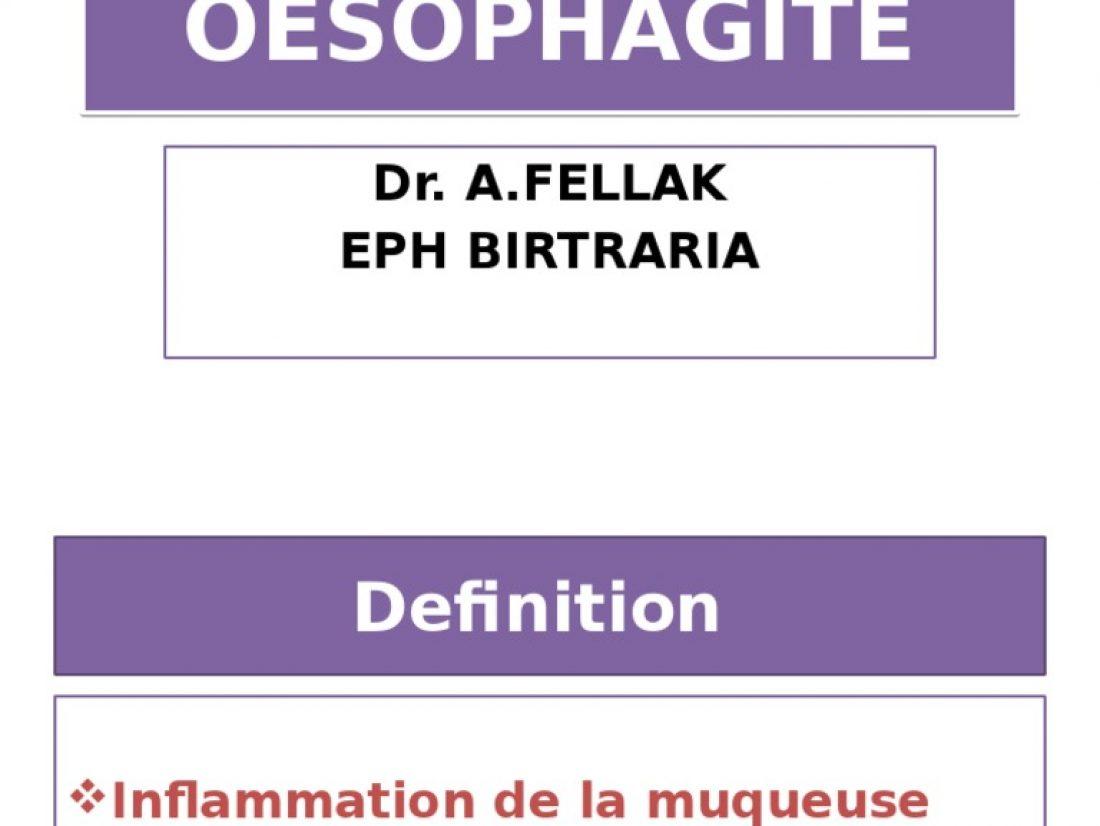 Oesophagite, quels sont les symptômes ?