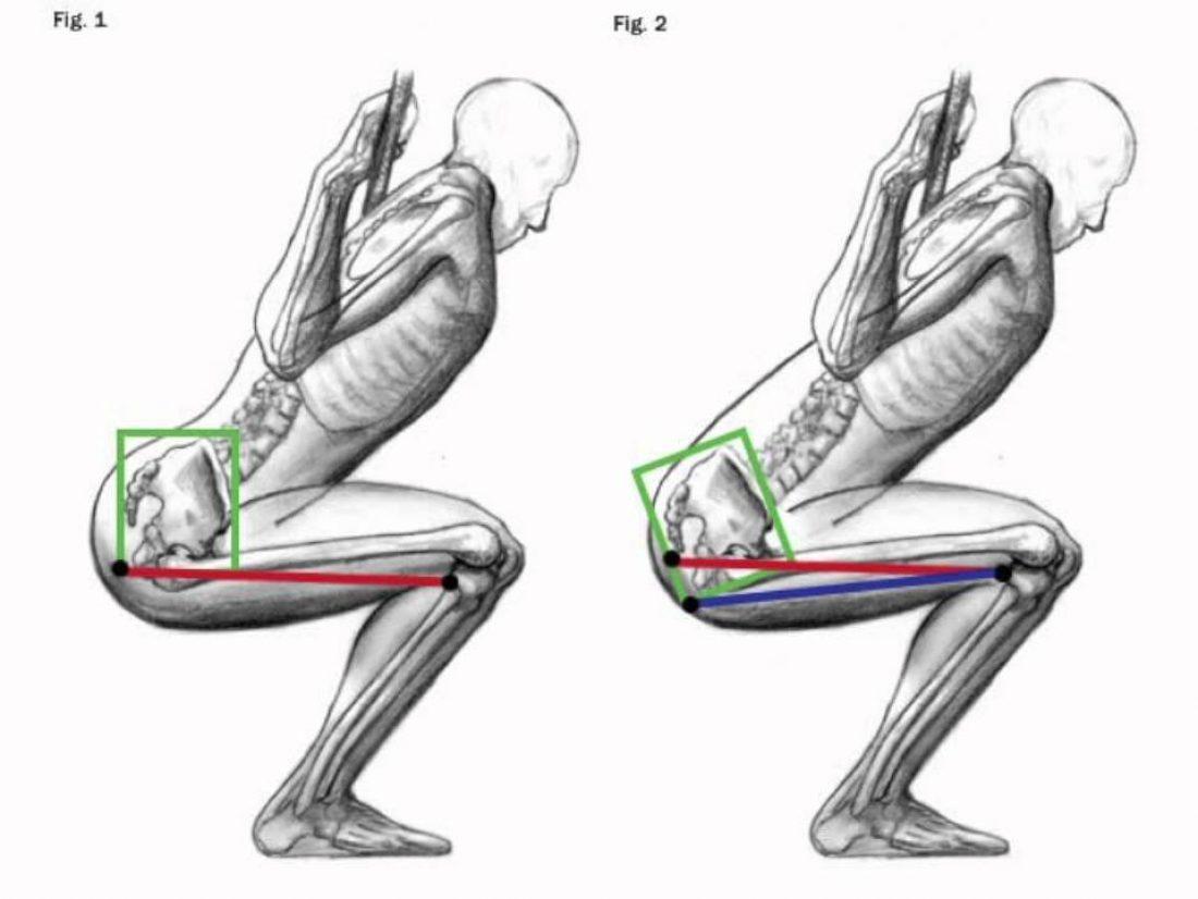Douleur jambe : faire la différence entre une crampe et une contracture