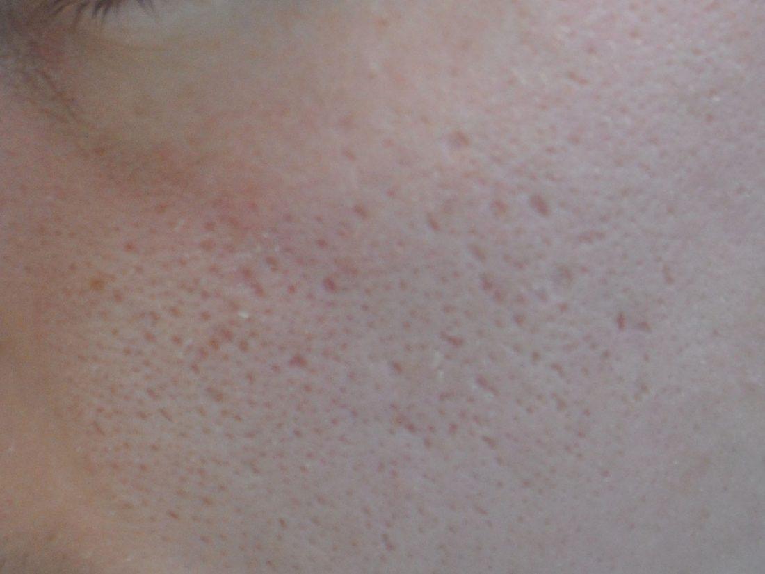 Comment effacer les cicatrices d'acné ?