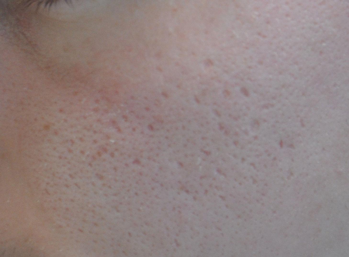 Comment effacer les cicatrices d'acné