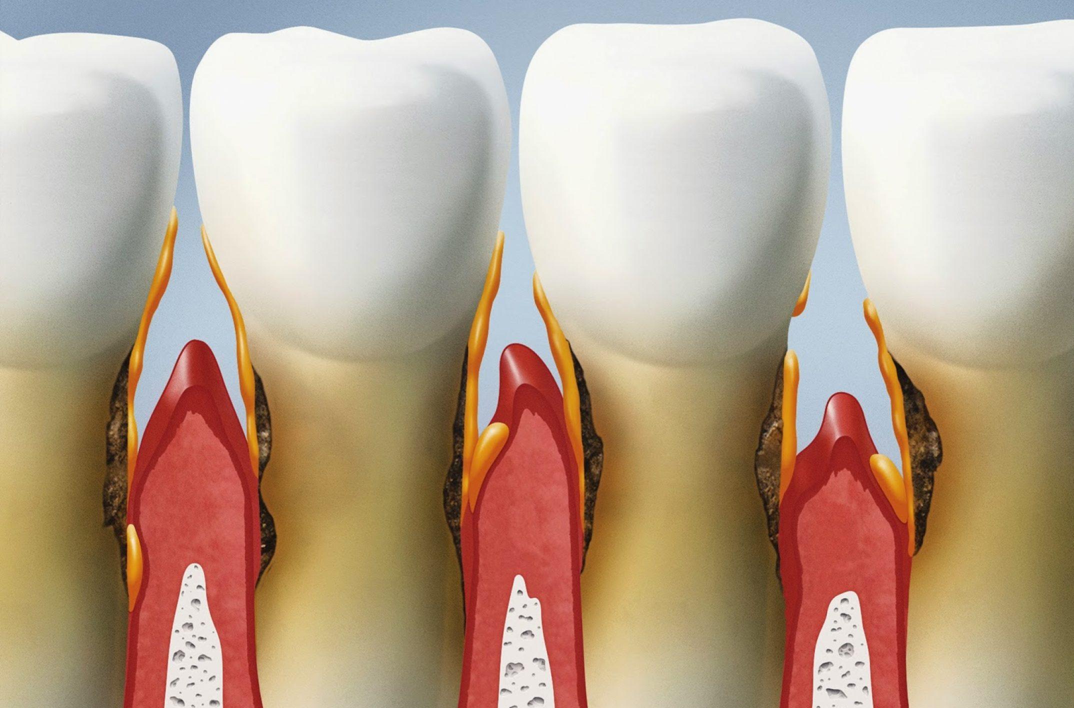 Comment faire partir un abces dentaire ?